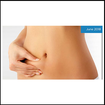 How to choose the right cryolipolysis treatment?