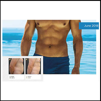 SHAPE A GREAT LOOKING MALE BODY THANKS TO MEDICAL CRYOLIPOLYSIS
